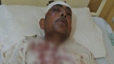 Photo of ڈومیلی کے نواحی علاقہ میں معمولی تلخ کلامی پر جھگڑا، کلہاڑی کے وار سے ایک شخص زخمی