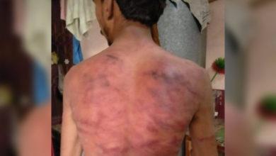 Photo of پنڈدادنخان کے طالب علم پر 5 مسلح افراد کا بیمانہ تشدد، طالب علم زخمی حالت میں ہسپتال منتقل